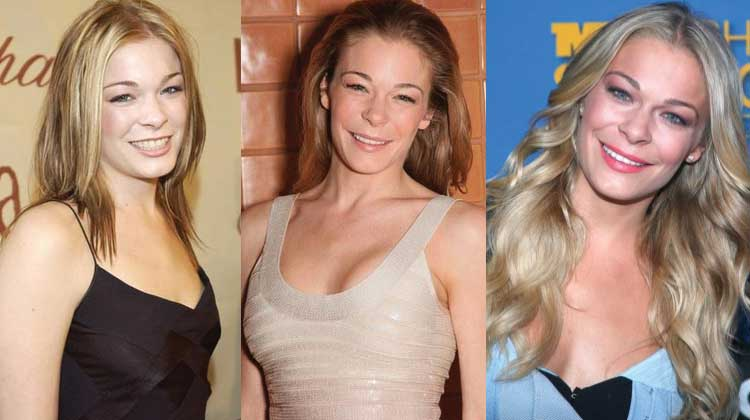 LeAnn Rimes Plastic Surgery Before and After 2017