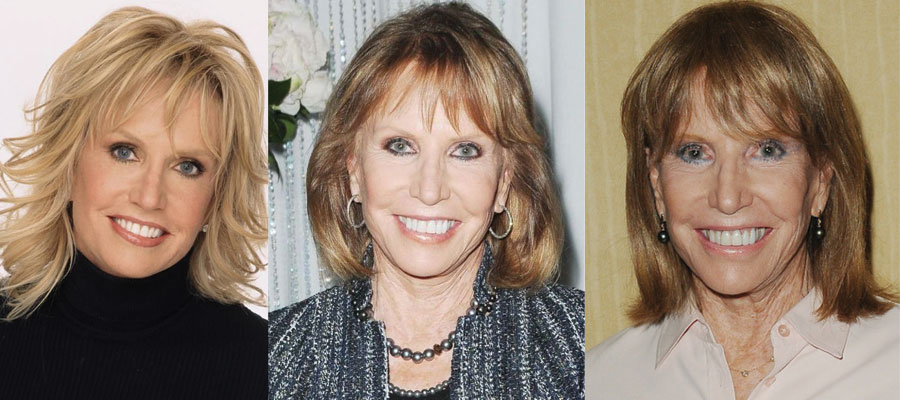 Leslie Charleson Plastic Surgery Before and After 2021