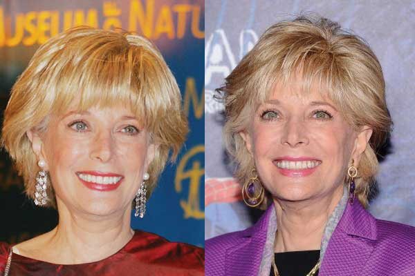 Leslie Stahl Plastic Surgery Before and After 2017