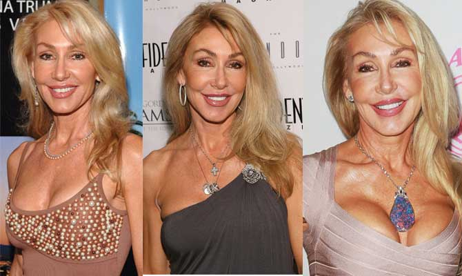 Linda Thompson Plastic Surgery Before and After 2017