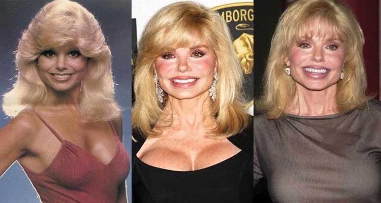 Loni Anderson Plastic Surgery Before and After 2018