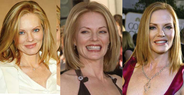 Marg Helgenberger Plastic Surgery Before and After 2019
