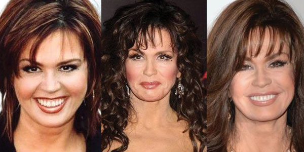 Marie Osmond Plastic Surgery Before and After 2017