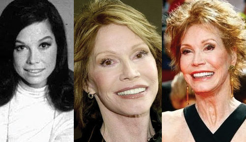 Mary Tyler Moore Plastic Surgery Before and After 2017