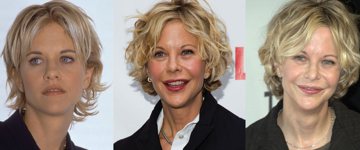 Meg Ryan Plastic Surgery Before and After 2020