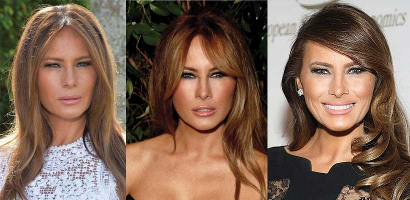 Melania Trump Plastic Surgery Before and After 2017