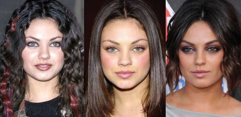 Mila Kunis Plastic Surgery Before and After 2017