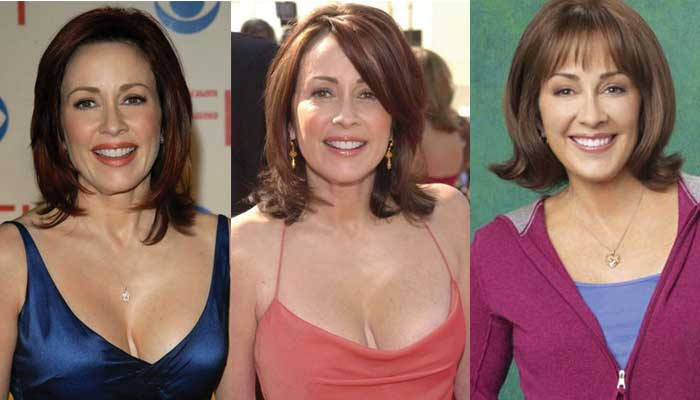Patricia Heaton Plastic Surgery Before and After 2017