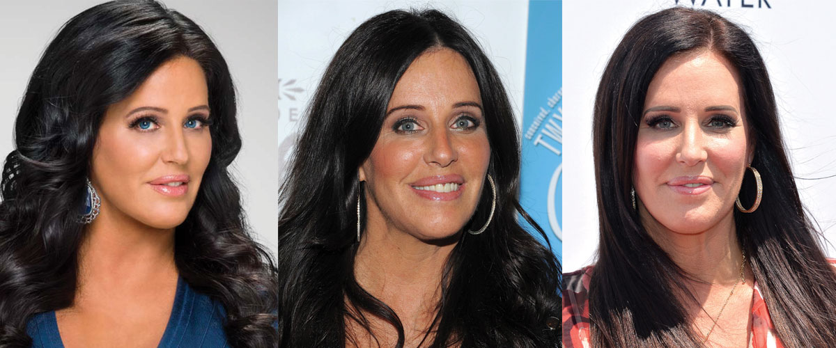 Patti Stanger Plastic Surgery Before and After 2020