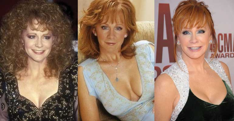 Reba Mcentire Plastic Surgery Before and After 2020