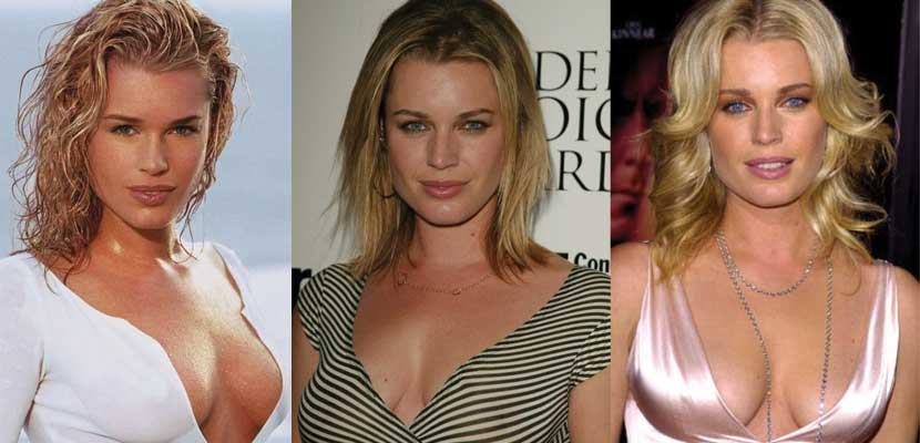 Rebecca Romijn Plastic Surgery Before and After 2017