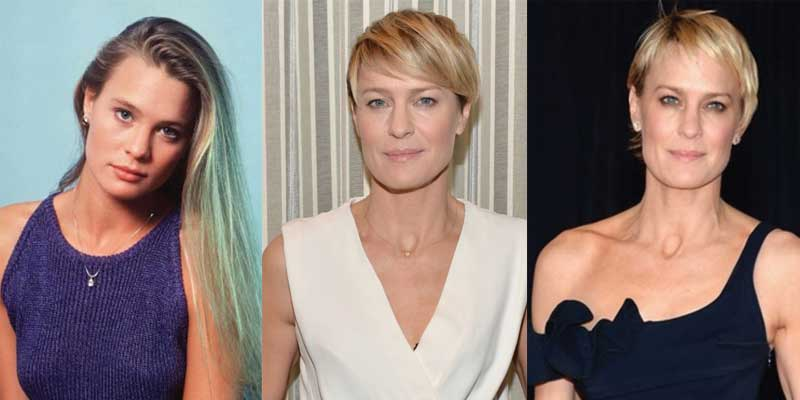 Robin Wright Plastic Surgery Before and After 2018