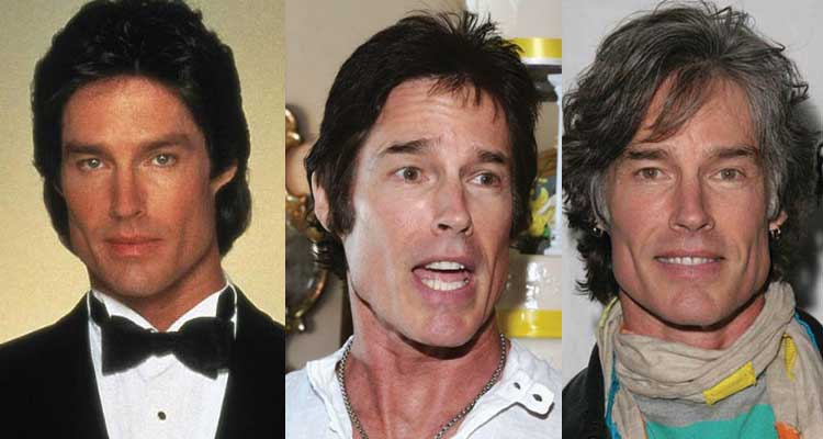 Ronn Moss Plastic Surgery Before and After 2017