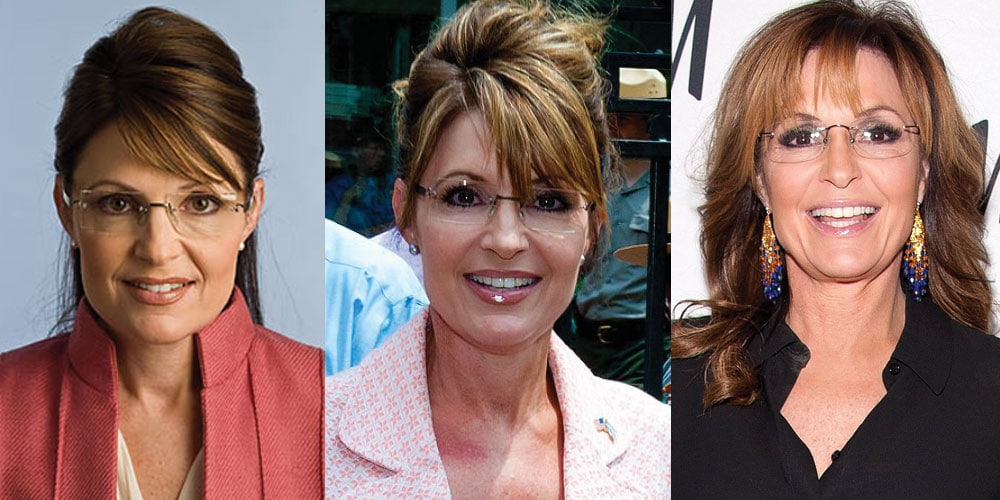 Sarah Palin Plastic Surgery Before and After 2021