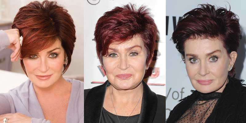 Sharon Osborne Plastic Surgery
