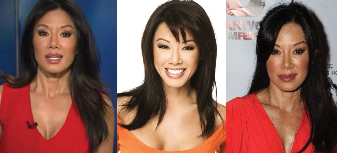 Sharon Tay Plastic Surgery Before and After 2021