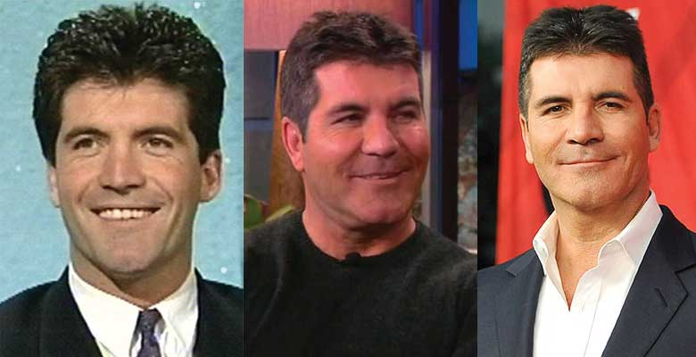 Simon Cowell Plastic Surgery Before and After 2018