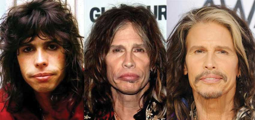 Steven Tyler Plastic Surgery Before and After 2017