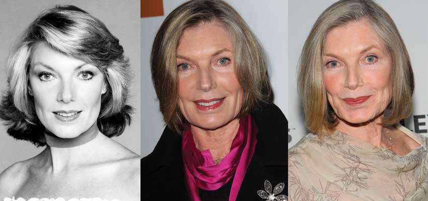 Susan Sullivan Plastic Surgery Before and After 2017