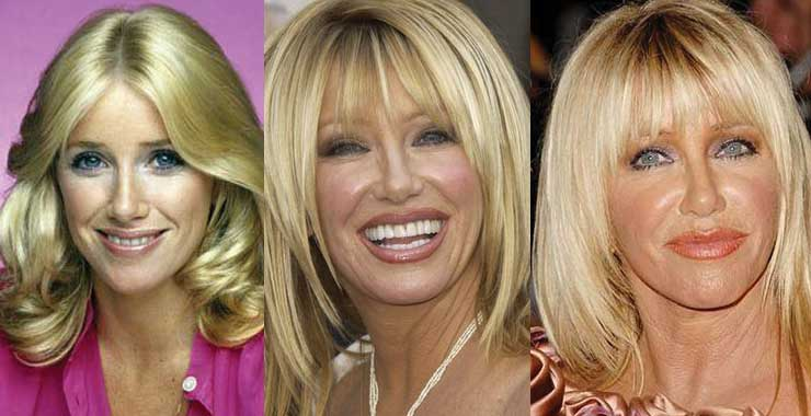 Suzanne Somers Plastic Surgery Before and After 2019
