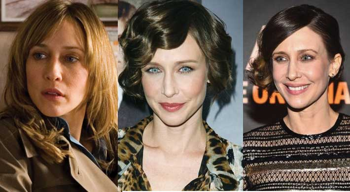 Vera Farmiga Plastic Surgery Before and After 2019