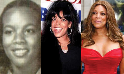 Wendy Williams Plastic Surgery Before and After Pictures 2017