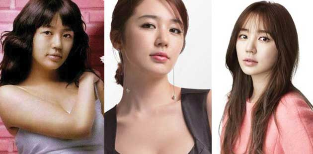 Yoon Eun Hye Plastic Surgery Before and After 2018