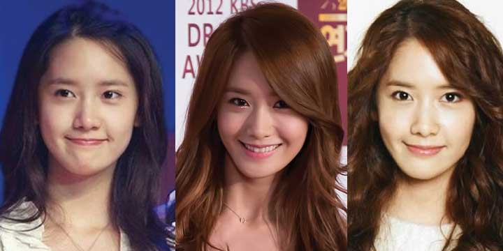 Yoona Plastic Surgery Before and After 2018